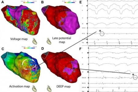 kardiologoi-peiraia Αρρυθμίες (1)