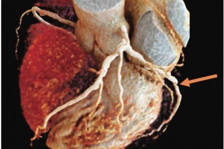 kardiologoi-peiraia - CCTA (2)